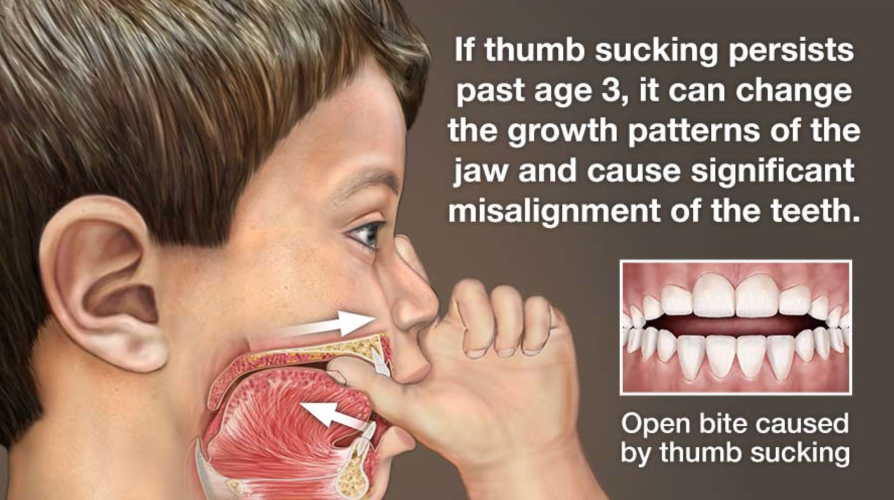 Why your child needs to kick the thumb