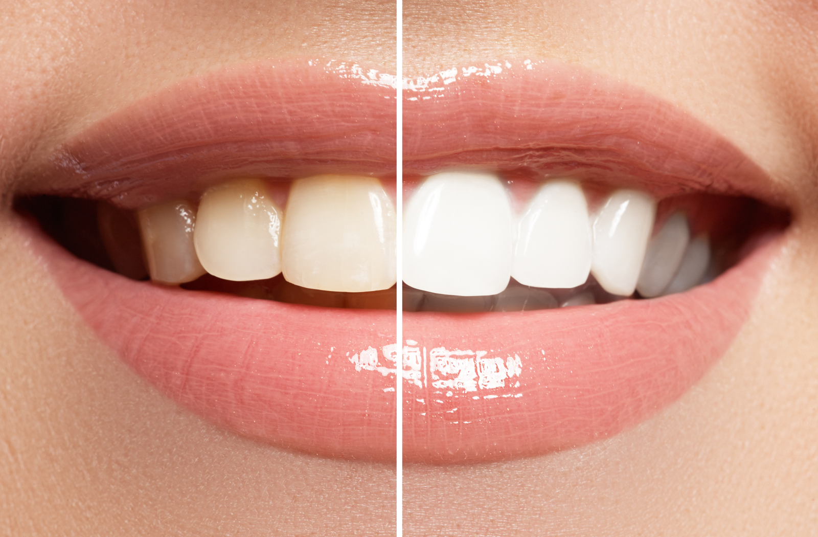 Before and after of woman's teeth for teeth whitening.