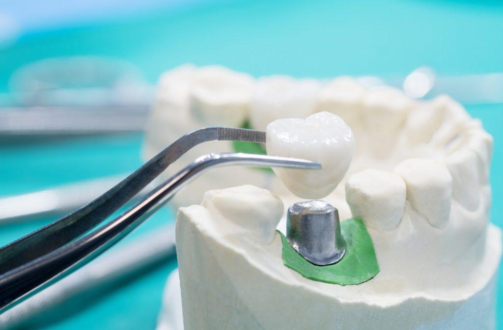 3D model of dental crown with crown being placed on top of teeth