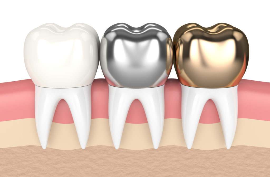 3D model of different dental crowns available