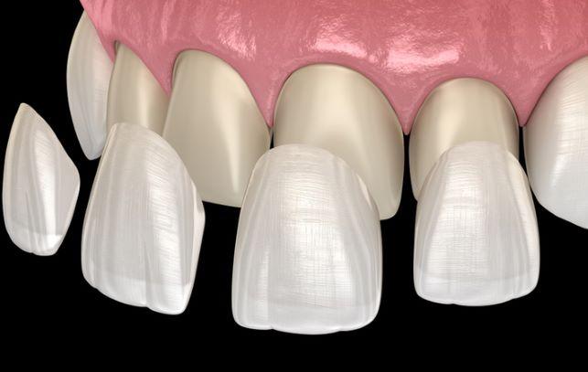 3d illustration of dental Veneers being placed on top of teeth